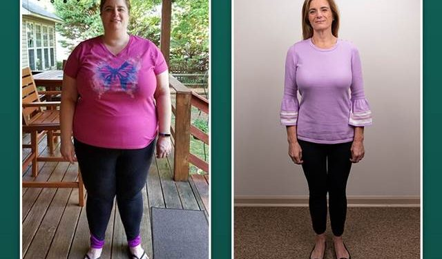 Debunking 6 Common Myths on Weight Loss Surgery