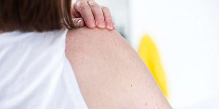 Everything You Need to Know About Skin Cancer Clinic in Brisbane
